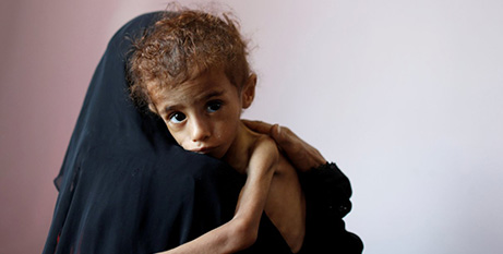 A woman holds a malnourished child at a hospital in Sanaa, Yemen (CNS/Khaled Abdullah, Reuters)